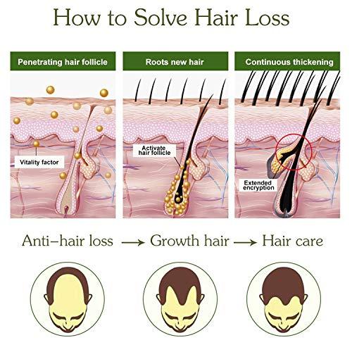 Sérum de crecimiento del cabello, antipérdida de cabello, para acelerar el crecimiento del cabello, promueve más cabello ticker, más completo y más rápido crecimiento