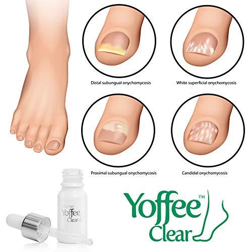 Yoffee - Yoffee Clear - Purity Nail - Antibacteriano y antiséptico, Tratamiento de Uñas de los hongos, Apto para dedos y pedicura, con Árbol de Té y Aceite de Argán (10ml)